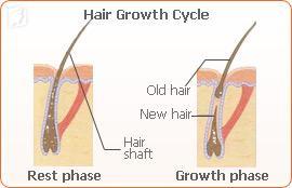 Female Hair Loss before Menopause1