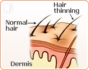 All women will experience some hair loss or thinning at some point of their lives.