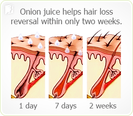 Onion juice helps hair loss reversal within only two weeks