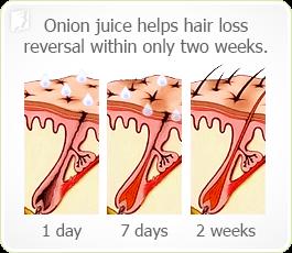 Onion Juice help hair loss