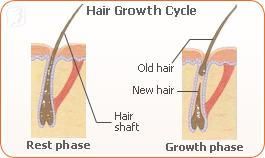 hair-loss-phase