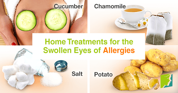 Home Treatments for the Swollen Eyes of Allergies1
