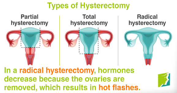 In a radical hysterectomy, hormones decrease because the ovaries are removed.