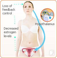 Decreased estrogen levels cause hot flash episodes.
