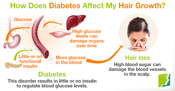 How Does Diabetes Affect My Hair Growth?