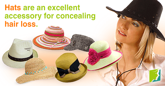 Hats are an excellent accessory for concealing hair loss