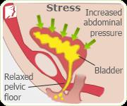 Incontinence Symptom Information | 34 Menopause Symptoms
