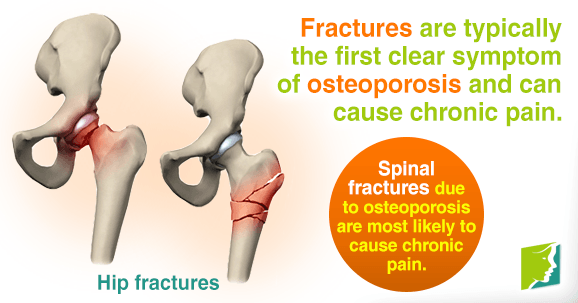 Fractures are the first clear symptom of osteoporosis and can cause chronic pain