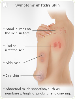Symptoms of Itchy Skin
