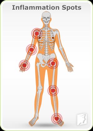 Inflammation Spots