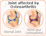 joint-pain-menopause