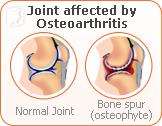 joint-pain-menopause