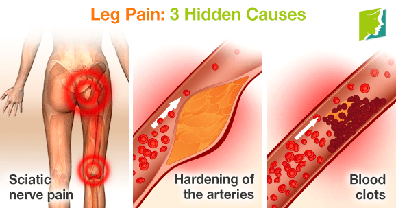 Leg Pain: 3 Hidden Causes