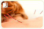Menstrual Disorder and Acupuncture