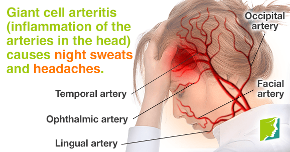 Inflammation of arteries in the head causes night sweats and headaches