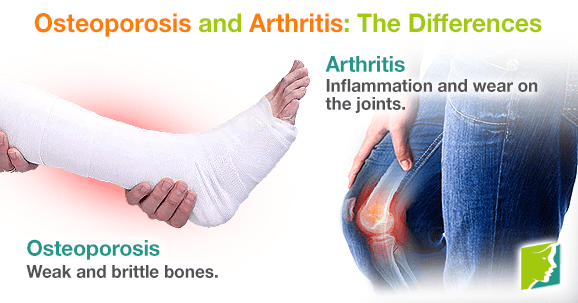 Osteoporosis and Arthritis: The Differences