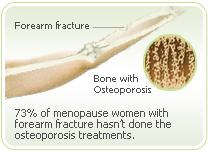 Osteoporosis broken
