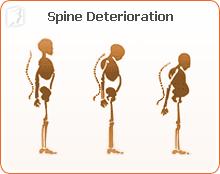 Spine Deterioration