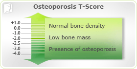 osteoporosis symptom information | 34-menopause-symptoms, Skeleton