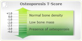 Osteoporosis Risk Factors 1