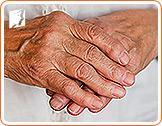 osteoporosis-disorder