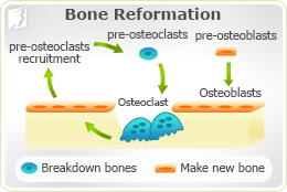 Causes of Osteoporosis 2