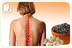 Osteoporosis in Your Spine