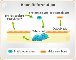 understanding how osteoporosis occurs and affects the human bones Understanding bone structure how does osteoporosis affect bone various factors are known to increase the rate at which bone loss occurs.