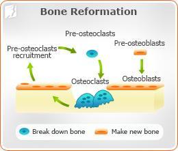 Bone Reformation