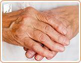 Osteoporosis in Older Women1