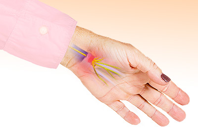 Pin and Needles Sensation in Hands