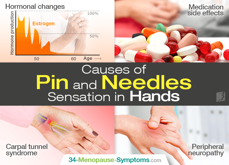 b2c0ce93d88 Pin and Needles Sensation in Hands | Menopause Now