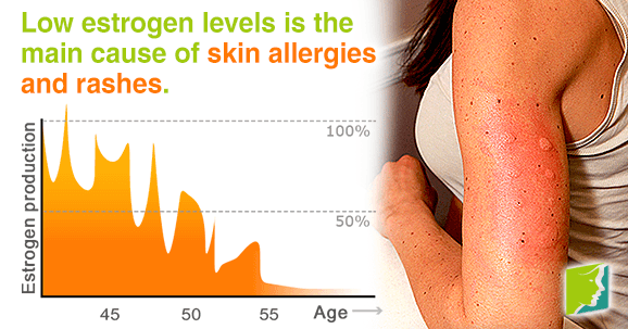 skin-allergies-and-rashes-during-menopause.png