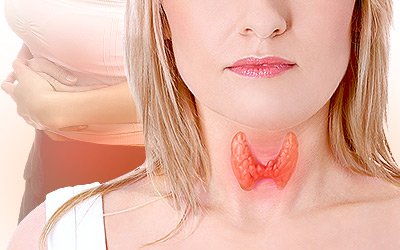 Thyroid and Irregular Periods