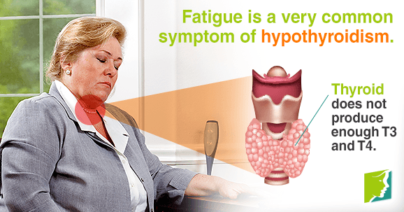 Thyroid Problems and Fatigue: Should I Be Worried?
