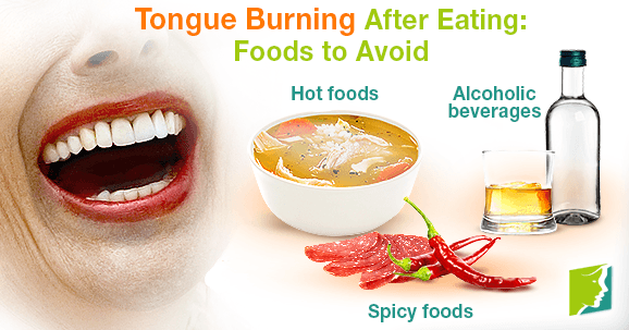 Tongue Burning After Eating: Foods to Avoid