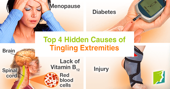 Top 4 Hidden Causes of Tingling Extremities