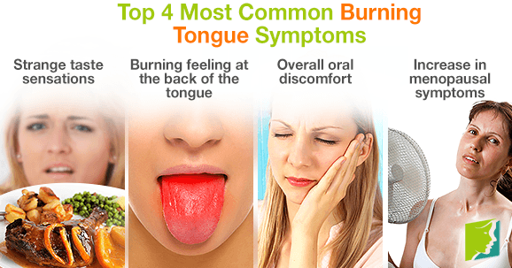 Top 4 Most Common Burning Tongue Symptoms