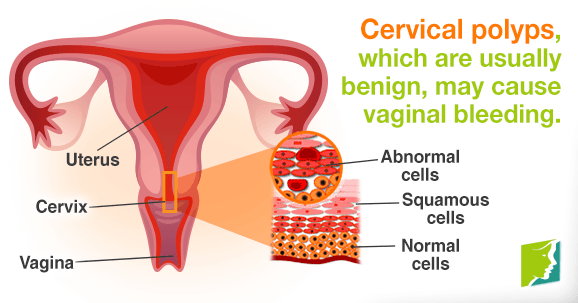 Cervical polyps, which re usually benign, may cause vaginal bleeding