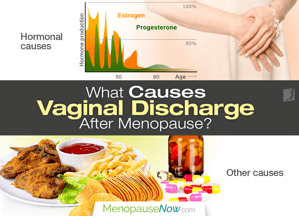 Discharge during menopause vaginal