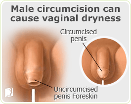 Uncircumsied men