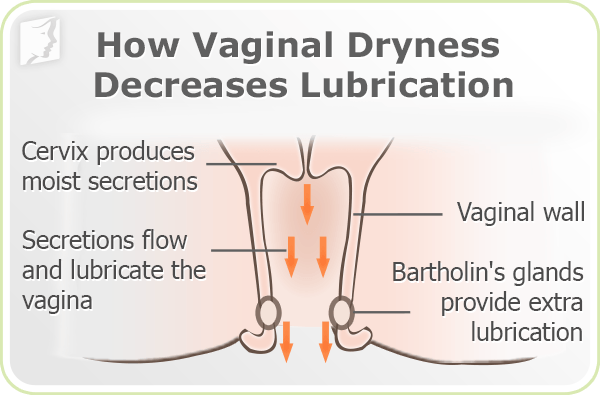 How Vaginal Dryness decreases lubrication