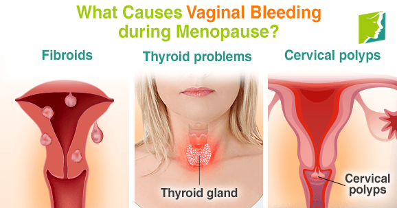 What Causes Vaginal Bleeding during Menopause?