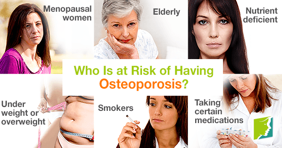 Who Is at Risk of Having Osteoporosis?