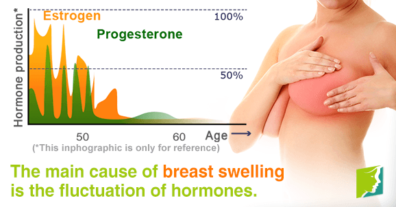 The main cause of breast swelling is the fluctuation of hormones.